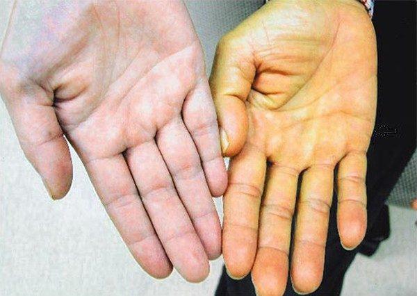 Hãy cảnh giác nếu bạn có biểu hiện bất thường như lòng bàn tay bị vàng