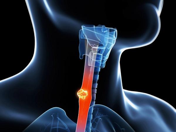 xét nghiệm tầm soát ung thư thực quản