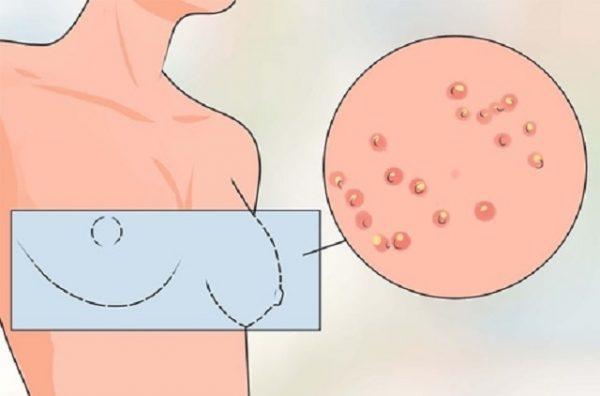 Nổi mụn xung quanh tuyến vú xuất phát từ nhiều nguyên nhân, có thể bắt nguồn từ ung thư vú