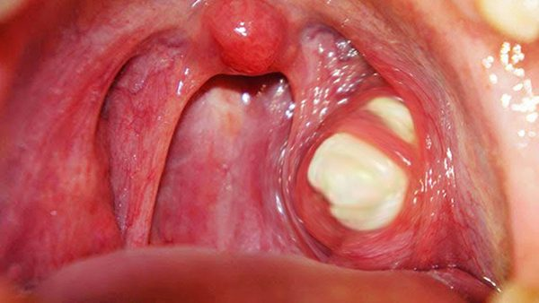 Viêm amidan có mủ và ung thư vòm họng dễ khiến nhiều người nhầm lẫn