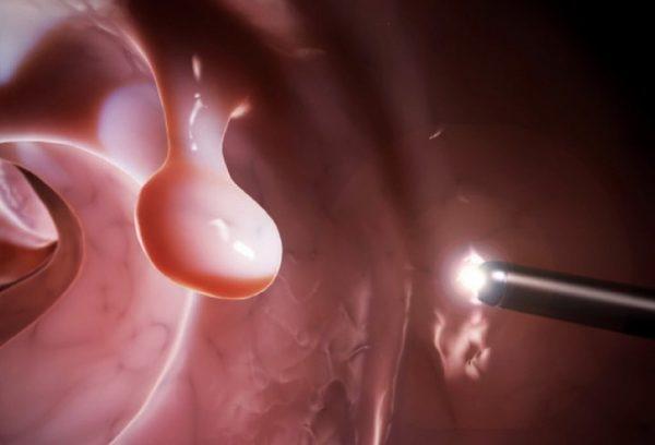 điều trị polyp dạ dày