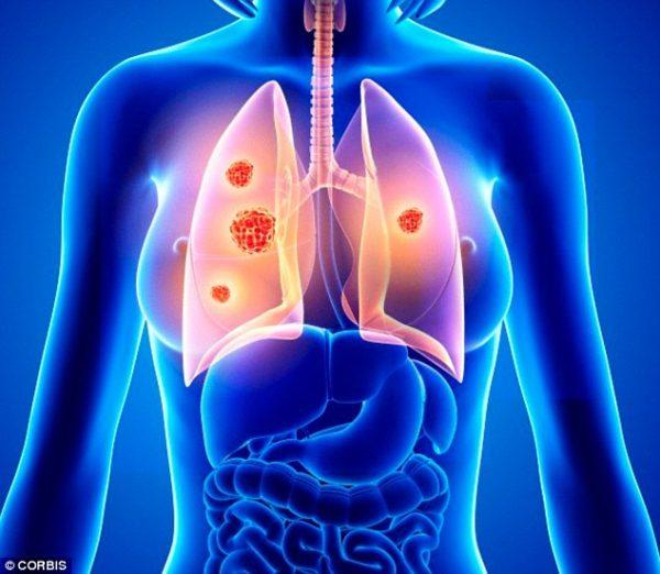 Ung thư phổi không gây triệu chứng ở giai đoạn đầu.