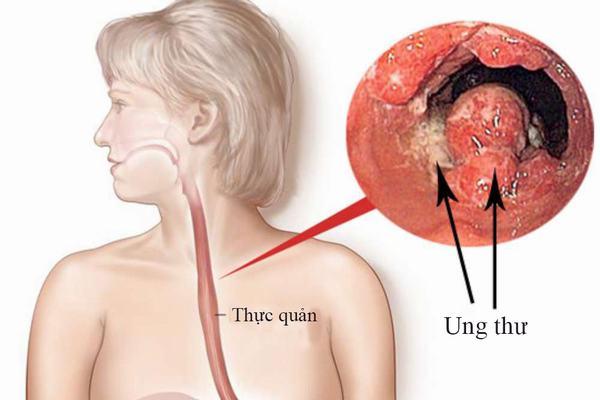 Ung thư thực quản là biến chứng nguy hiểm nhất của trào ngược dạ dày thực quản