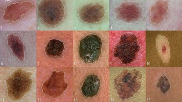 Các triệu chứng ung thư da thường biểu hiện ở nốt ruồi khác thường hoặc những vết loét lâu liền, dễ chảy máu