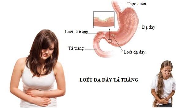 Viêm loét dạ dày tá tràng sẽ gây ra các cơn đau thượng vị, kèm theo buồn nôn và nôn