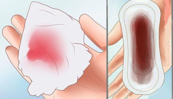 Ra huyết bất thường ở âm đạo là một trong những triệu chứng ung thư cổ tử cung điển hình nữ giới không nên bỏ qua