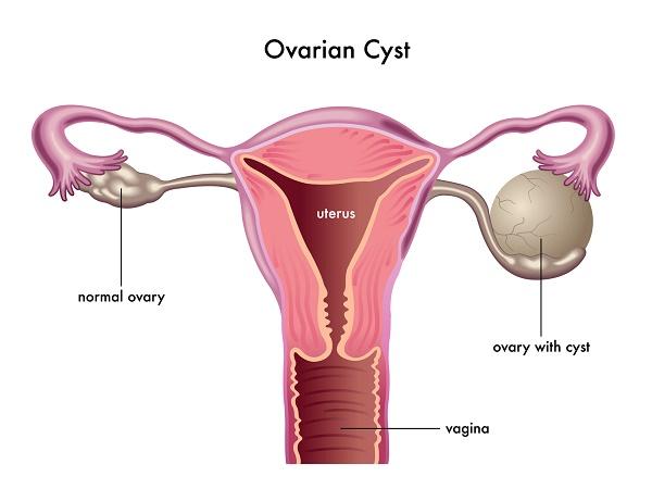 U nang buồng trứng có gây vô sinh không