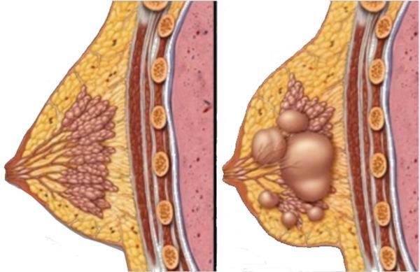 U nang tuyến vú là một khối u lành tính thường gặp ở phụ nữ trong độ tuổi 30-40 tuổi.