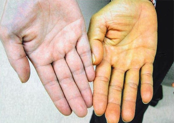 Vàng da là một trong những biểu hiện ung thư gan thường gặp