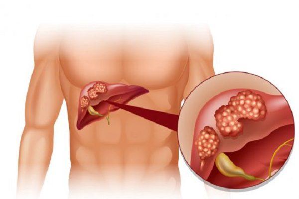 Ung thư biểu mô gan là loại ung thư gan phổ biến hơn cả
