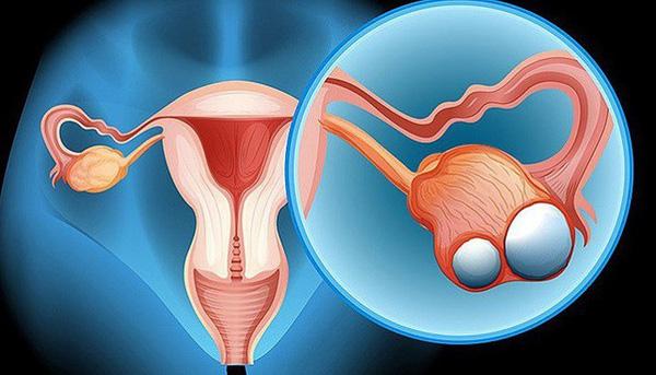 tầm soát ung thư buồng trứng