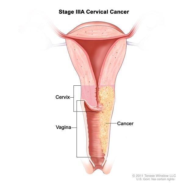 Ung thư cổ tử cung giai đoạn IIIA