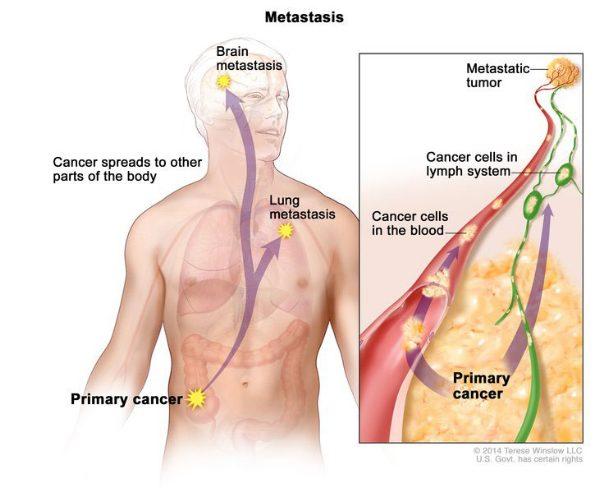 Ung thư đi vào trong mạch máu và di căn đến nhiều cơ quan ở xa vị trí ung thư khởi phát