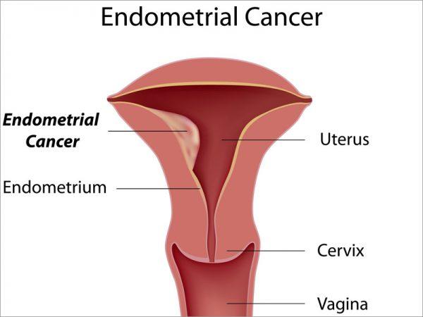 Nguyên nhân gây ung thư nội mạc tử cung và cách phòng ngừa