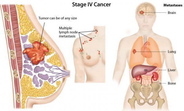 ở giai đoạn cuối, ung thư vú có thể di căn đến não, phổi, gan, xương...