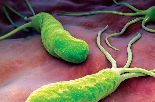 Theo thống kê, có tới 70% dân số Việt Nam bị nhiễm vi khuẩn HP
