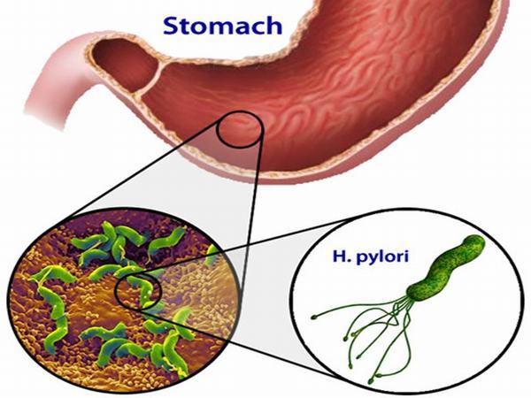 Vi khuẩn HP là một loại vi khuẩn phổ biến trong niêm mạc dạ dày, là nguyên nhân hàng đầu gây ra các bệnh về dạ dày