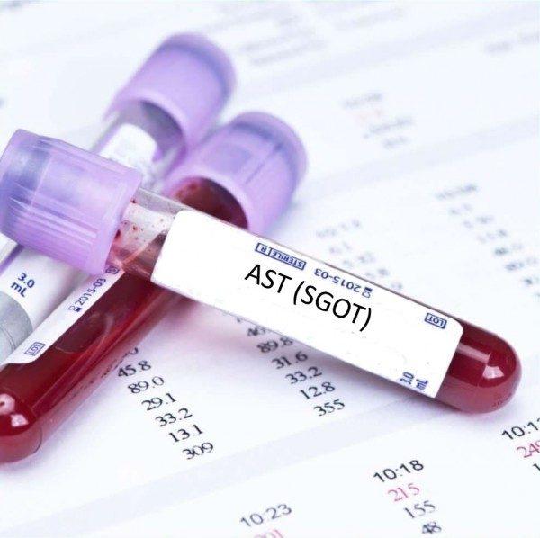 AST (Alanin Amino Transferase) là một trong 4 loại men gan (enzyme) đóng vai trò quan trọng trong phản ánh tình trạng của tế bào gan
