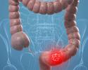 Bệnh viện nào chẩn đoán ung thư đại tràng?