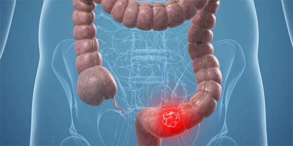 Ung thư địa tràng là bệnh ung thư đường tiêu hóa phổ biến