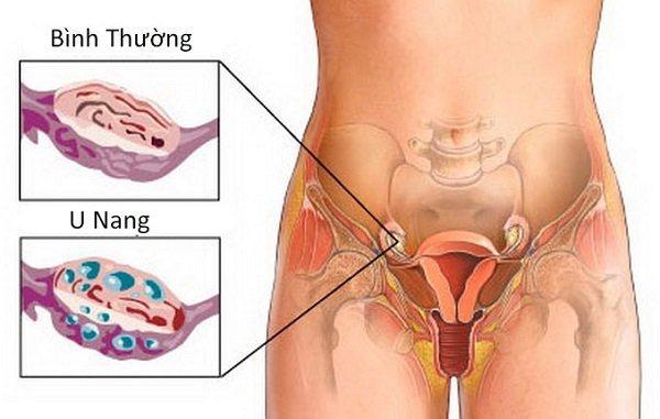 U nang buồng trứng là bệnh thường gặp ở chị em phụ nữ