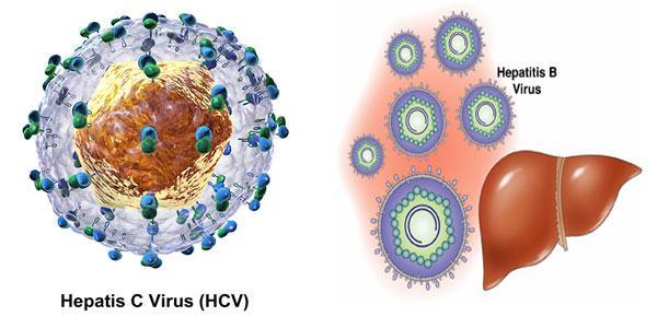 Virut viêm gan C là nguyên nhân gây viêm gan C