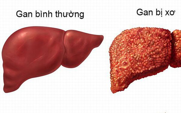 Virut viêm gan C nếu không được phát hiện và điều trị triệt để có thể gây biến chứng nguy hiểm như xơ gan, ung thư gan