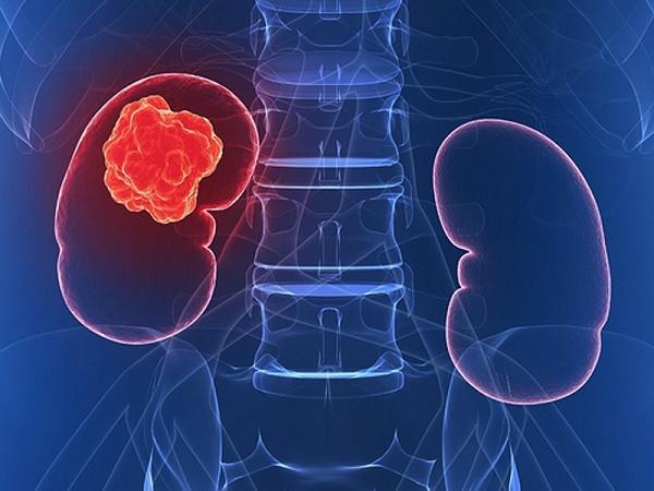 Các triệu chứng thường gặp nhất của ung thư thận