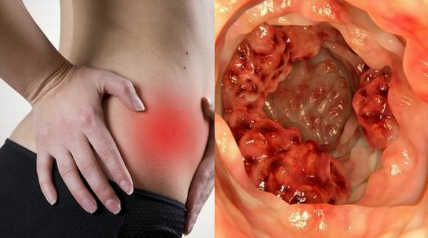 Chảy máu trực tràng do nhiều nguyên nhân khác nhau gây ra như viêm loét trực trạng mạn tính, polyp hoặc ung thư trực tràng