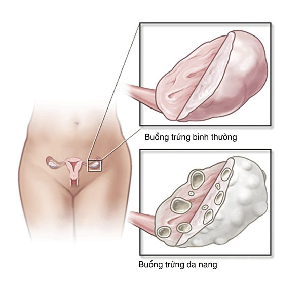 Đa nang buồng trứng khá phổ biến ở nữ giới, có thể gây vô sinh