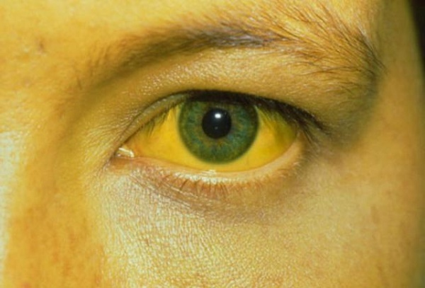 Vàng da, vàng mắt là những triệu chứng thường xuất hiện khi bệnh tiến triển nặng