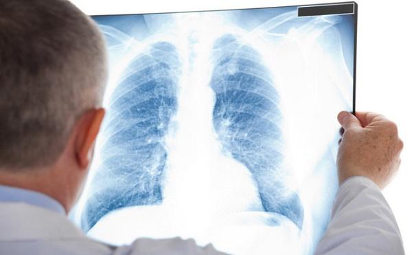 Dấu hiệu ung thư đại tràng di căn phổi