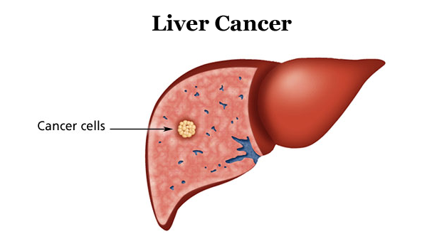Dấu hiệu ung thư gan tái phát như thế nào