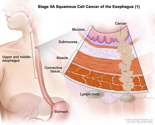Ung thư thực quản giai đoạn IIA