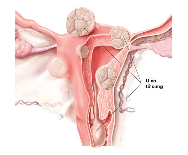 U xơ tử cung là những khối tăng trưởng của mô cơ tử cung