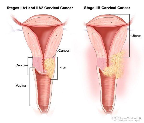 Ung thư cổ tử cung giai đoạn II