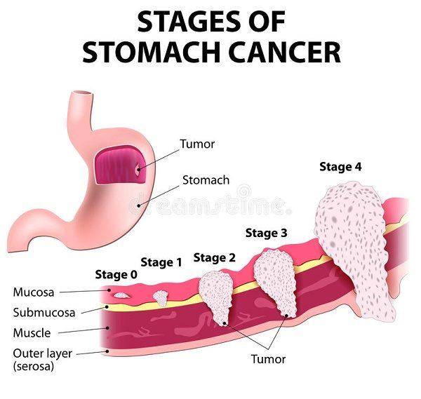 Các giai đoạn tiến triển ung thư dạ dày