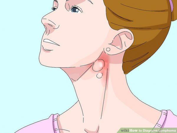 Các phương pháp điều trị ung thư hạch