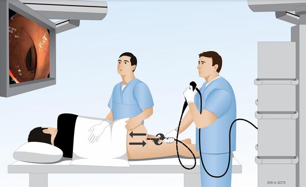 Nội soi đại tràng với ống soi mềm là phương pháp chẩn đoán ung thư đại tràng với độ chính xác cao