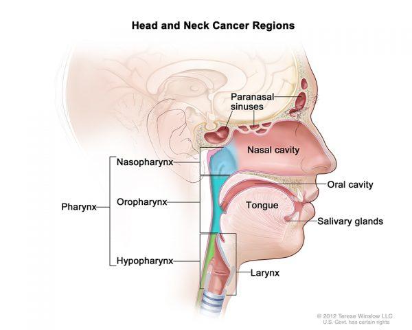Nghẹt mũi 1 bên dấu hiệu cảnh báo ung thư đầu cổ