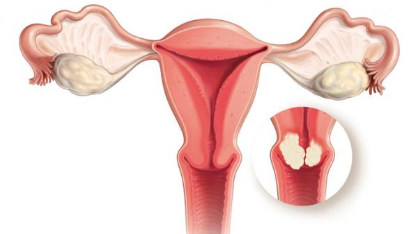 Viêm lộ tuyến cổ tử cung là điều kiện thuận lợi để ung thư cổ tử cung khởi phát