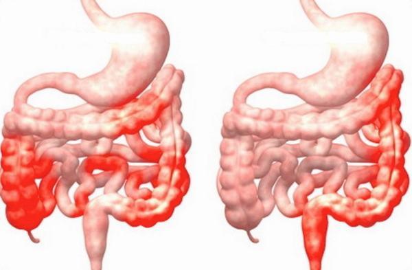 Những người mắc bệnh viêm đường ruột thường có nguy cơ cao bị sỏi hơn những người khác, đặc biệt là bệnh viêm loét đại tràng