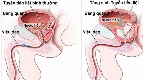 Tăng sản tuyến tiền liệt hay bệnh phì đại tuyến tiền liệt là một bệnh lý thường gặp ở nam giới.