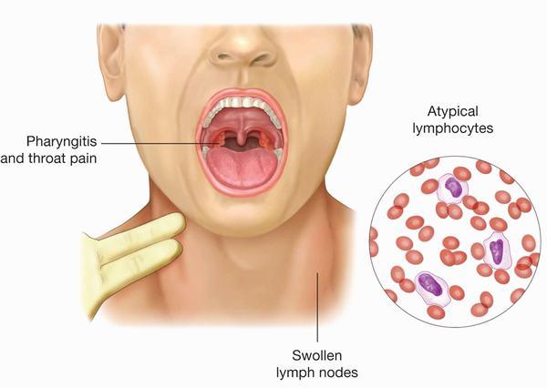 Ở một vài trường hợp, virus EBV gây ra các bệnh lý nguy hiểm như ung thư vòm họng