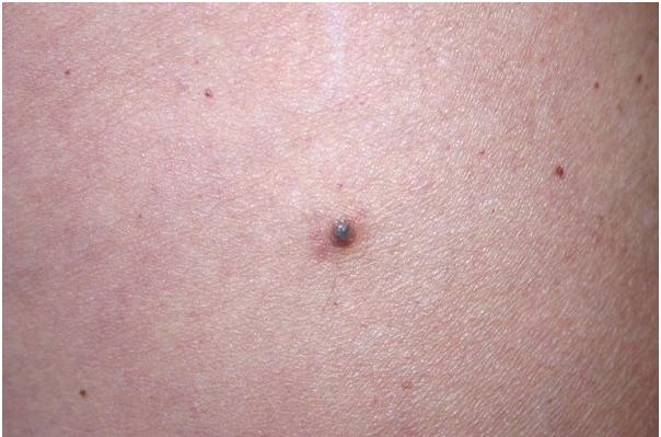 9 dấu hiệu ung thư thường bị bỏ qua nhất