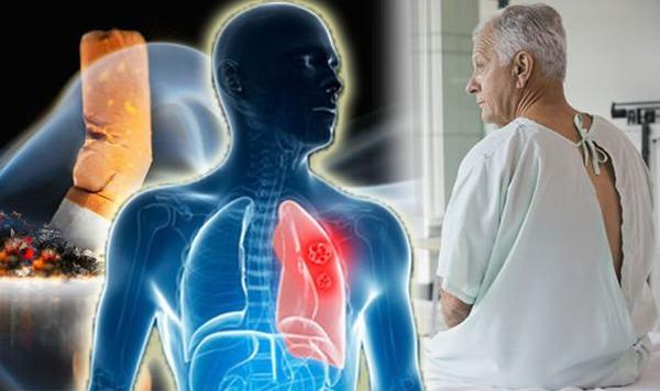 Dù điều trị bằng phương pháp nào, người bệnh cũng có thể gặp phải một số tác dụng phụ không mong muốn