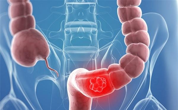 Tầm soát ung thư đại tràng thế nào?