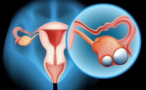 Triệu chứng bệnh ung thư buồng trứng giai đoạn đầu