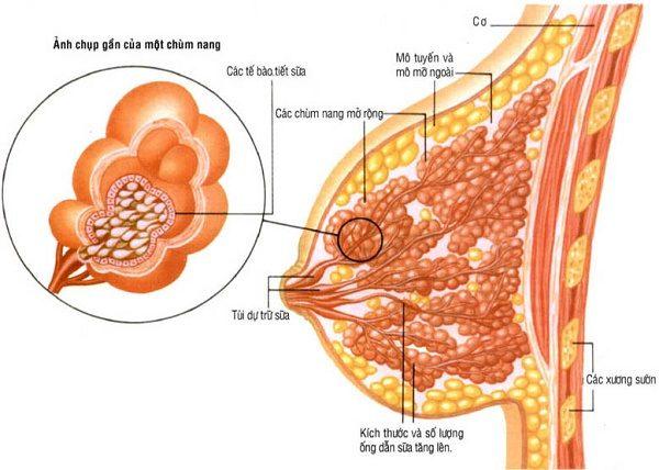 U nang vú là bệnh lý lành tính phổ biến ở nữ giới
