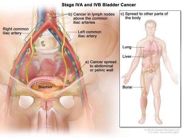 Ung thư bàng quang giai đoạn cuối có thể di căn đến xương, gan, phổi...